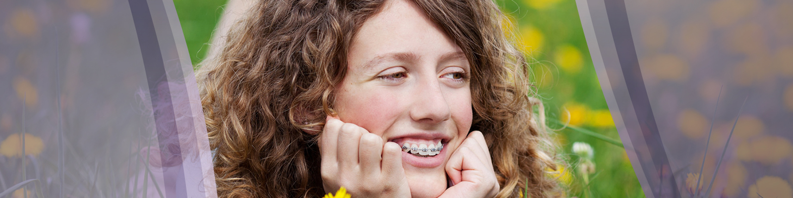 Orthodontic supplies online